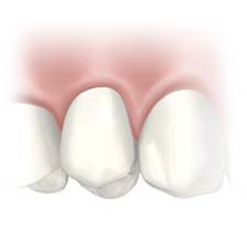 Mouth Illustration with seamless Dental Implant.